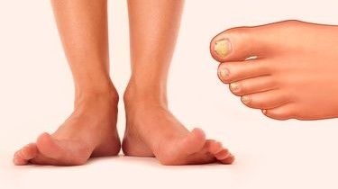 Где лечить грибок на ногах в москве