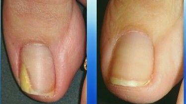 Сошел ноготь на большом пальце ноги после удара чем лечить
