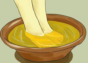 Рецепты с применением уксуса для лечения грибка ногтей