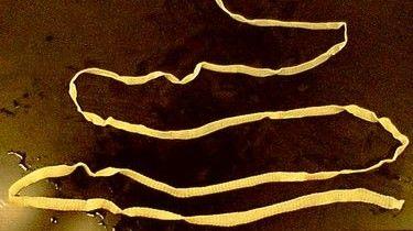 избавление от паразитов человека