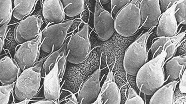 как лечить паразитов в организме человека таблетки