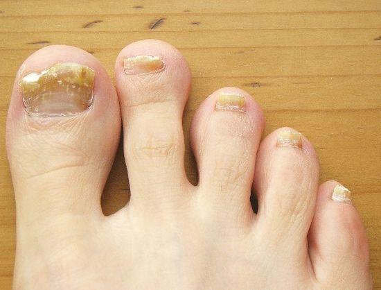 Глицерин и уксус против грибка ногтей на ногах