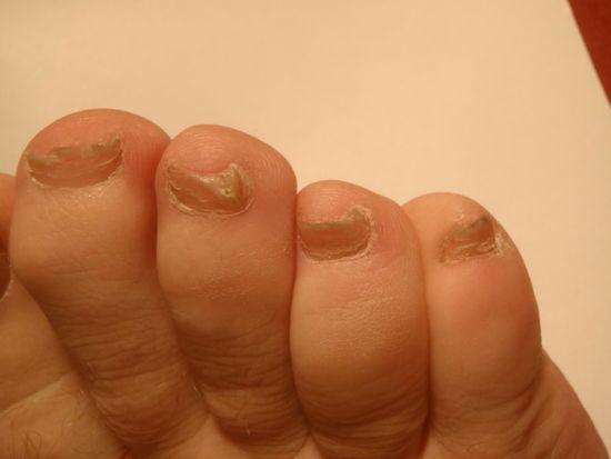 Лечение онихомикоза ногтей на руках поэтапно