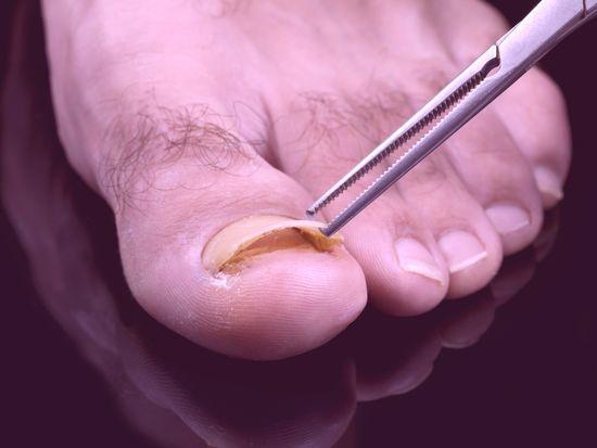 Как избавиться от грибка ногтей во время беременности