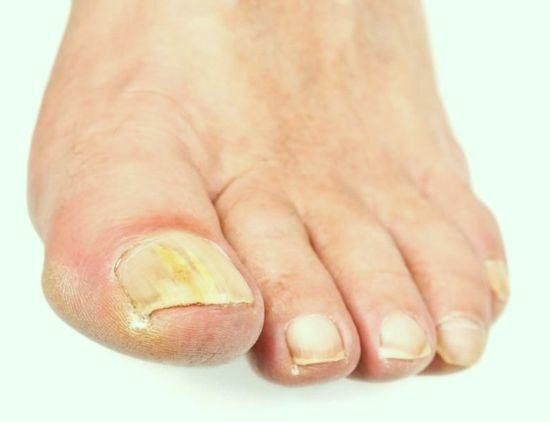 На ногтях грибок