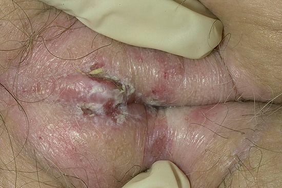 Аир болотный для лечения грибка ногтей