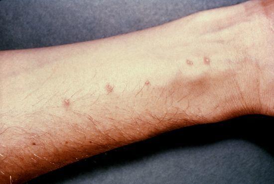Проявление паразитов на коже