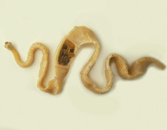 Тениоз-паразиты