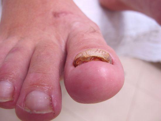 Грибки на ногах как избавиться