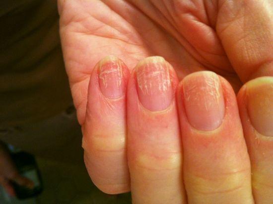 Грибок ногтей стадий