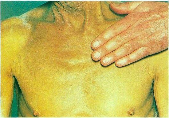 Синдром желтухи