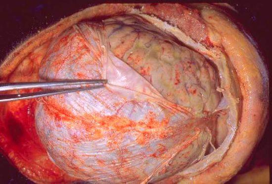 Эхиноккоз мозга