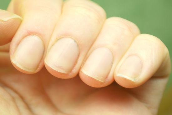Грибок на ногтях рук