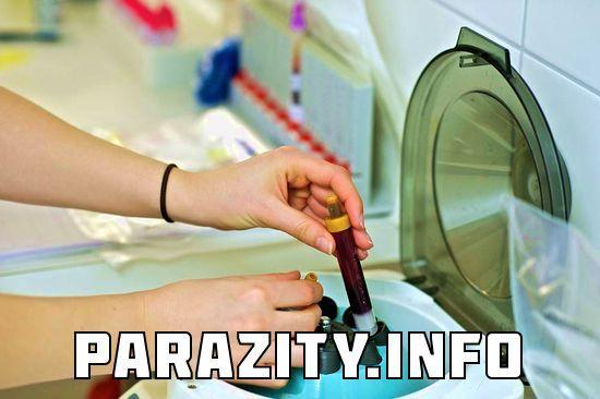 паразиты в сосудах человека